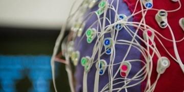 فراخوان طراحی و ساخت الکترودهای عصبی  توسط فناوران ایرانی 