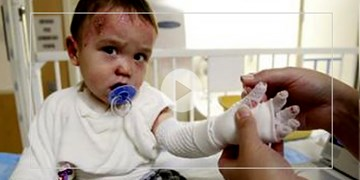 وزارت بهداشت درباره مشکلات بیماران ای بی پاسخگو نیست/  وضعیت نامعلوم 3 تُن از پانسمانهای اهدایی یونیسف