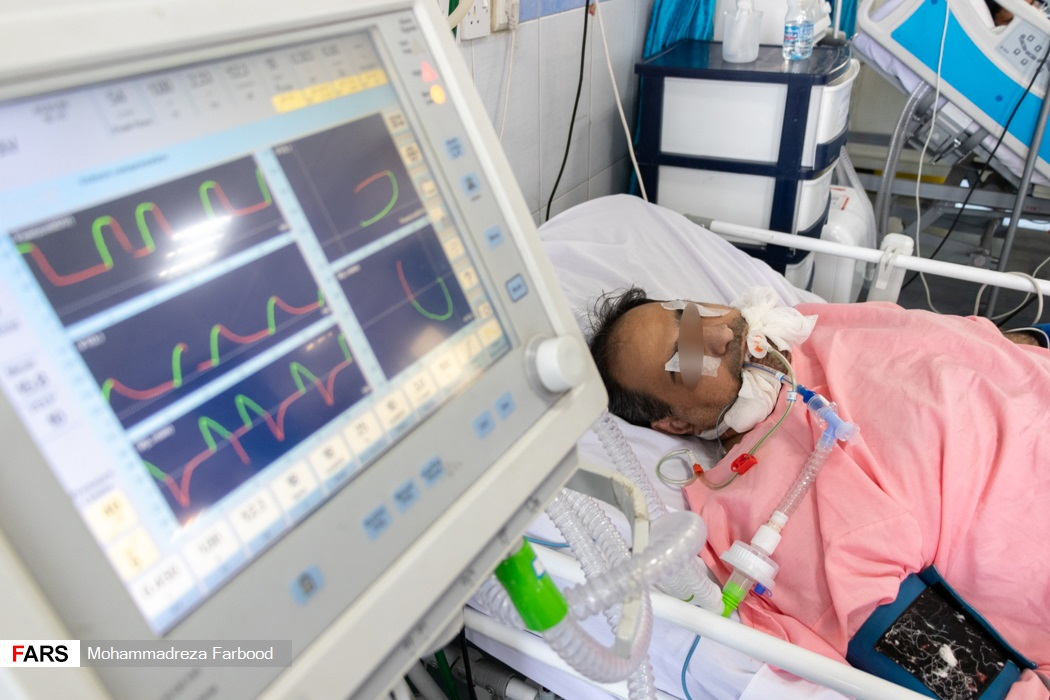 بیمار کرونایی بخش ICU بیمارستان حضرت علی اصغر(ع) شیراز