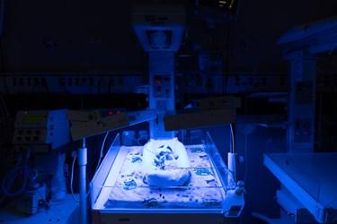 قل پنجم (  قل E  ) در بخش  مراقبت های ویژه نوزادان ( NICU 4 ) زیر دستگاه فتوتراپی جهت درمان زردی / بیمارستان حضرت زینب(س) شیراز
