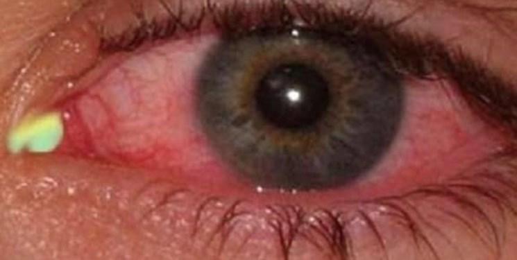 شایع ترین علائم «چشمی» ابتلا به کرونا