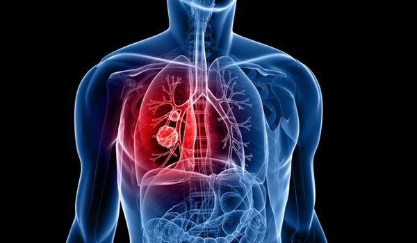 Iranian Scientists Produce Magnetic Nano-Fibers to Transfer Drugs to Lung Tumors