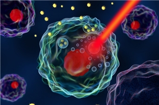Gold Nanoparticles to Treat Prostate Cancer
