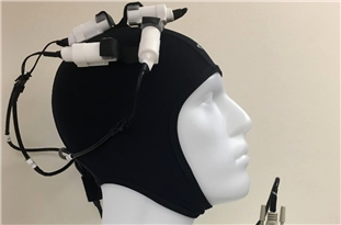 Magnetic Stimulation Enhances Brain Activity, Aiding Stroke Recovery