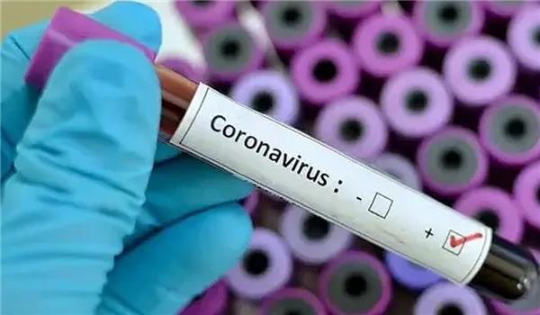 Iran Unveils Production Line of 2 Types of Coronavirus Kits