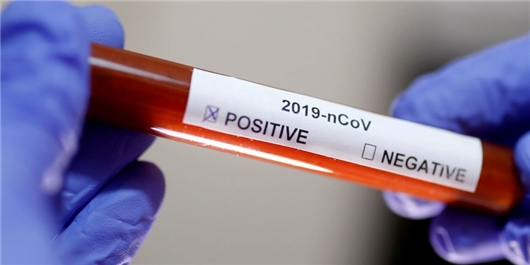 Iran Unveils Advanced Test Kit Able to Detect Coronavirus in 3 Hours