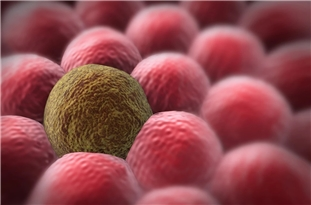 Inherited Genetics Can Drive Cancer's Spread