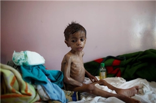 More Civilians Die in Yemen as Coronavirus Spreads