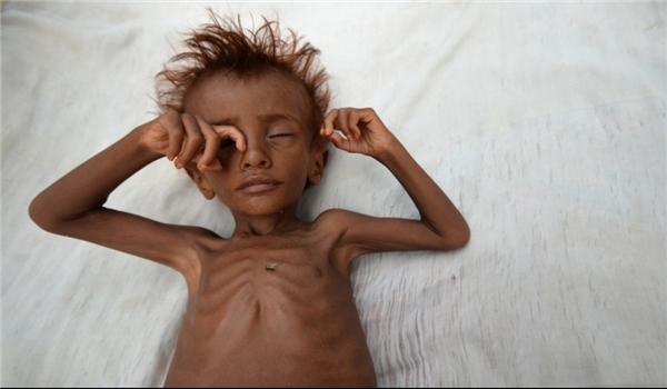 UN Warns Nearly 10 Million People Facing Acute Food Shortages in Yemen