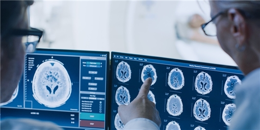 Iran, Canada, Switzerland, Poland in Joint Research Project to Treat Brain Cancer