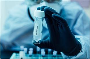 Dexamethasone Should Be a Standard Drug in Severe COVID-19