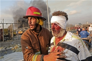 Beirut Explosion Disaster Casualty Dey Increase: Dozens Dead, Thousands Injured