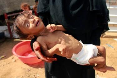 Saudi Crisis in Yemen