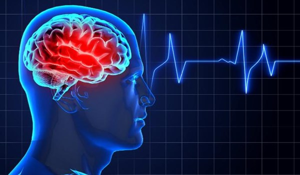 Stroke Warning Signs Often Occur Hours or Days before Attack