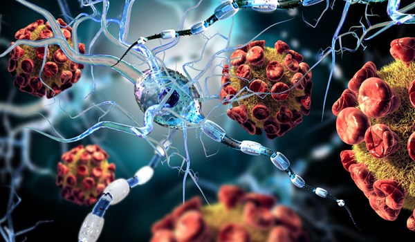 Study Finds: New Coronavirus Can Infect Brain Cells