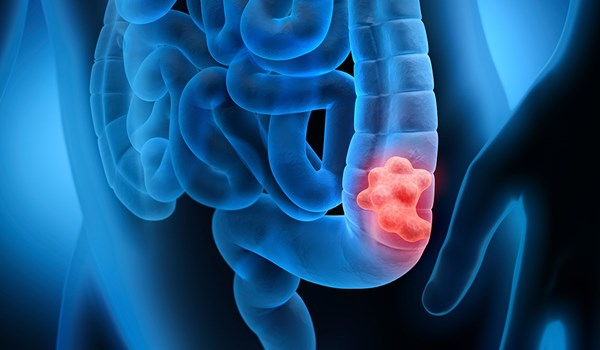 Iranian Researchers Introduce Inhibitor, Suppressor of Colorectal Cancer Tumors